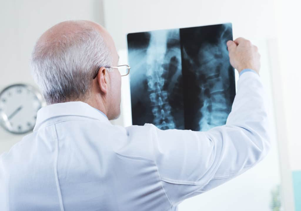 Spinal Decompression Therapy: Is It Right For Me?